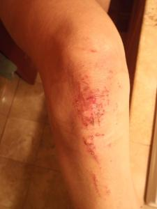 Right knee 10/27/13 post Bend Race